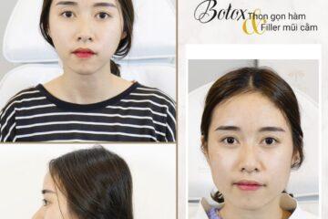 Lưu ý khi tiêm botox để có gương mặt thon gọn nhất